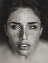freckles_